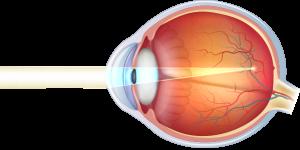 bulbo-oculare-miope