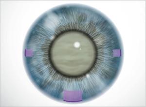 operazione-cataratta-taglio-cornea